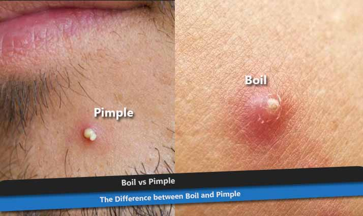 Boil vs. Pimple