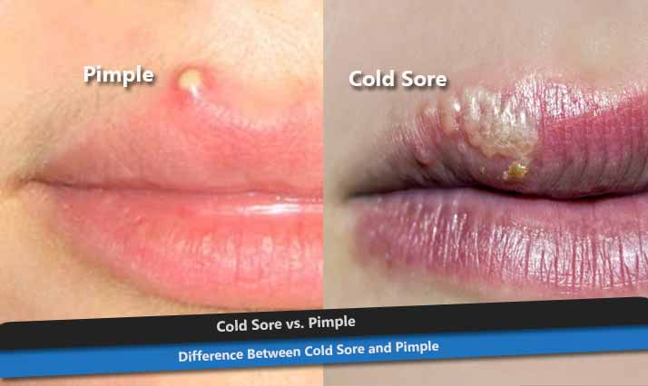 Cold Sore vs. Pimple on Lip
