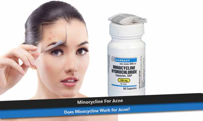 Minocycline for Acne