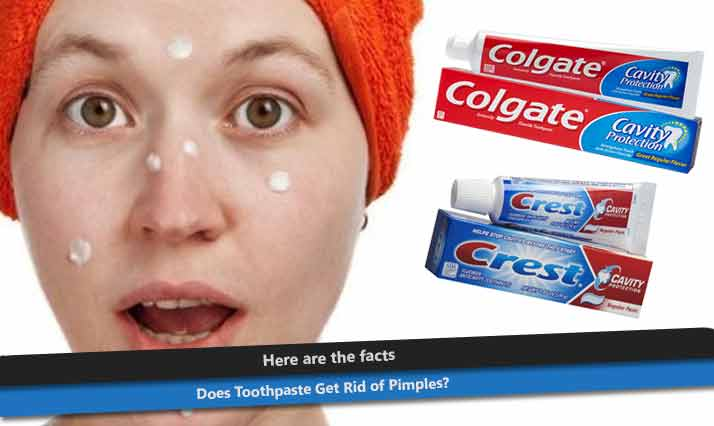 Can You Put Toothpaste On Spots