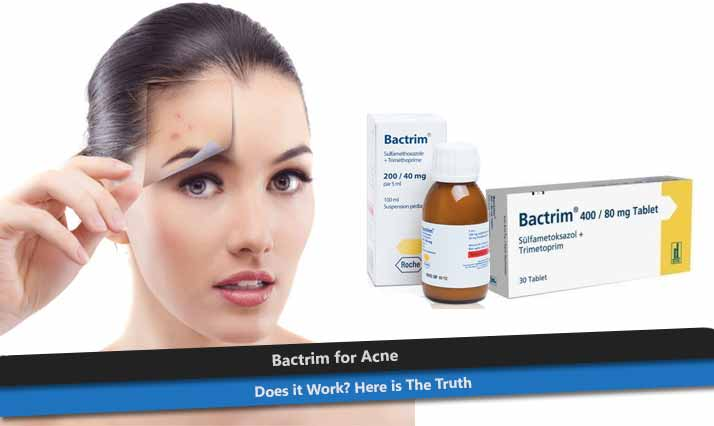 Bactrim for Acne