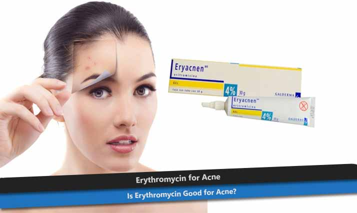 Erythromycin for Acne