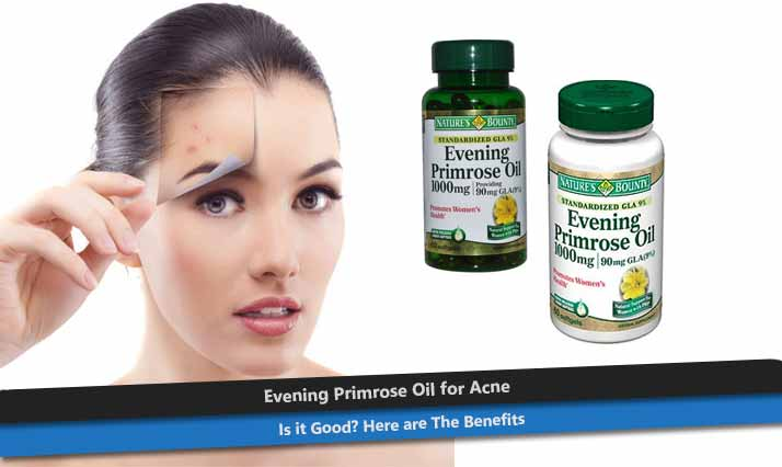 Evening Primrose Oil for Acne