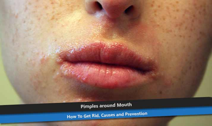 Small Pimples around Mouth