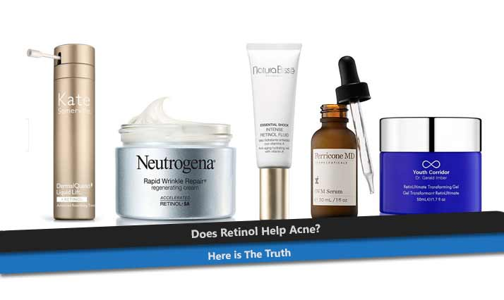Does Retinol Help Acne? Here is The Truth