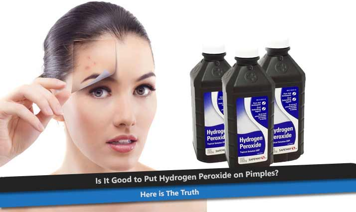 Hydrogen Peroxide for Pimples