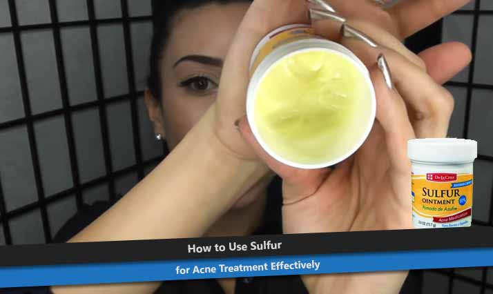 Sulfur Ointment for Acne
