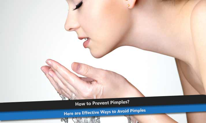 How to Prevent Pimples