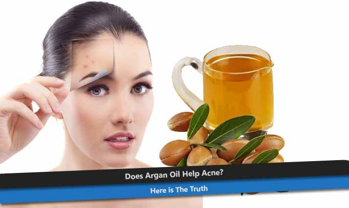 Argan Oil for Acne