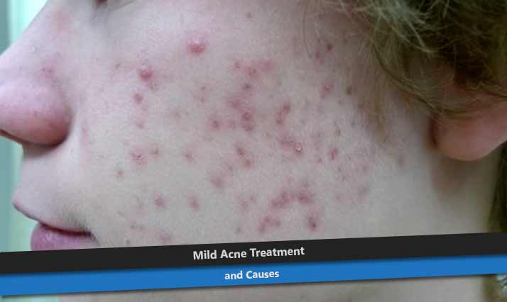how to get rid of mild acne