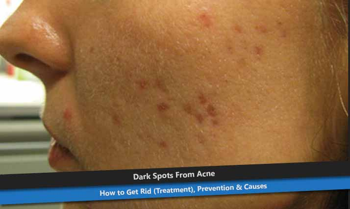 Dark Spots From Acne